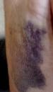 Déchirure du deltoïde : mon bras droit hier...